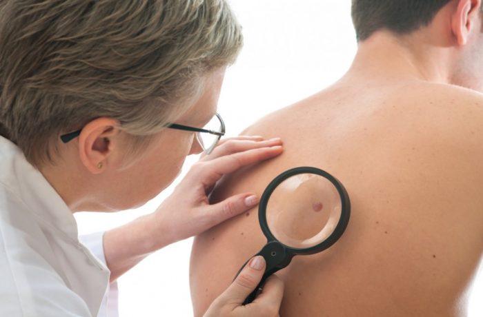 Dermatoscopii gratuite la Spitalul Municipal Dej