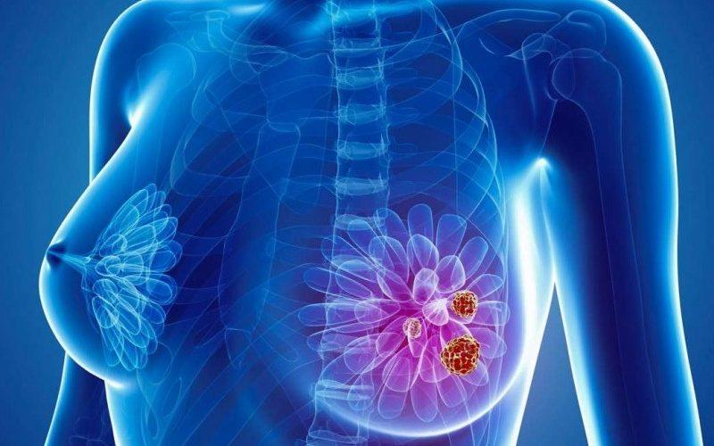 Program național pentru depistarea cancerului la sân