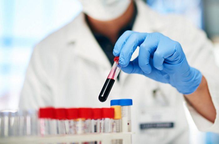 Lipsă acută de medici hematologi în România